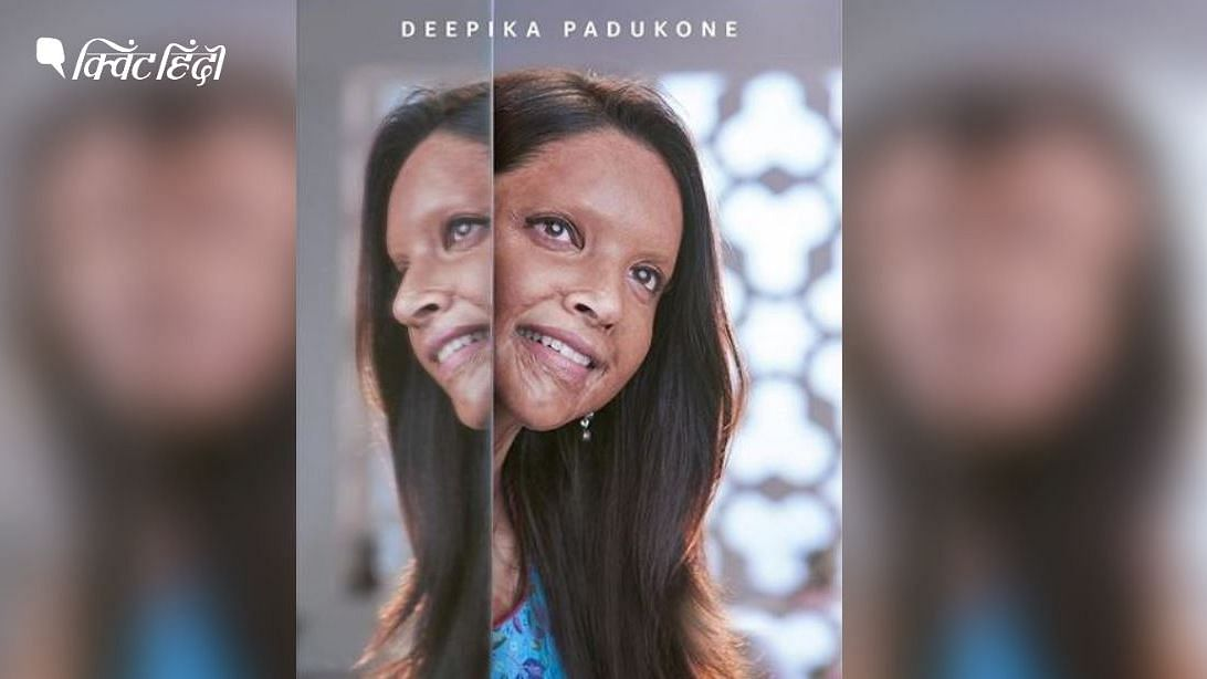 एसिड अटैक सरवाइर्स पर बनी दीपिका पादुकोण की फिल्म का पोस्टर
