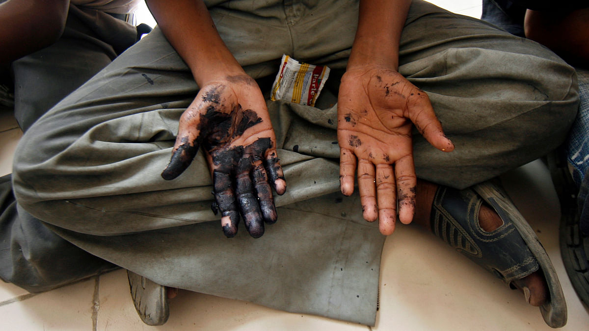 A child labourer shows his hands smeared with what he says are chemicals as he sits inside a police station in New Delhi after being rescued. (Photo: Reuters)