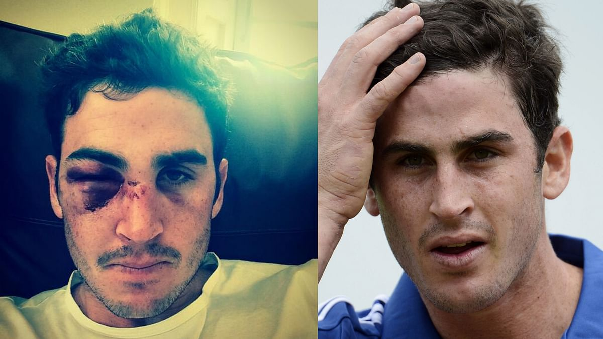 A member of England's World T20 winning squad, Kieswetter's career has met an abrupt end after he was hit on the eye with a ball during a match last year. (Photo courtesy: twitter.com/kiesy_22)
