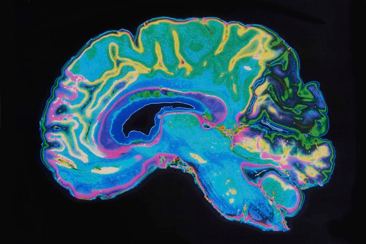 Brain scan of an Alzheimer's patient (Photo: iStock)