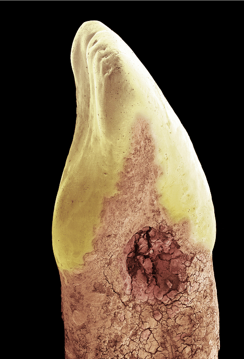 """Look away if you're squeamish. This holed up thing is a zoomed shot of a tooth cavity (Photo: Twitter/<a href=""""https://twitter.com/Barcroft_Media"""">@Barcroft_Media</a>)"""