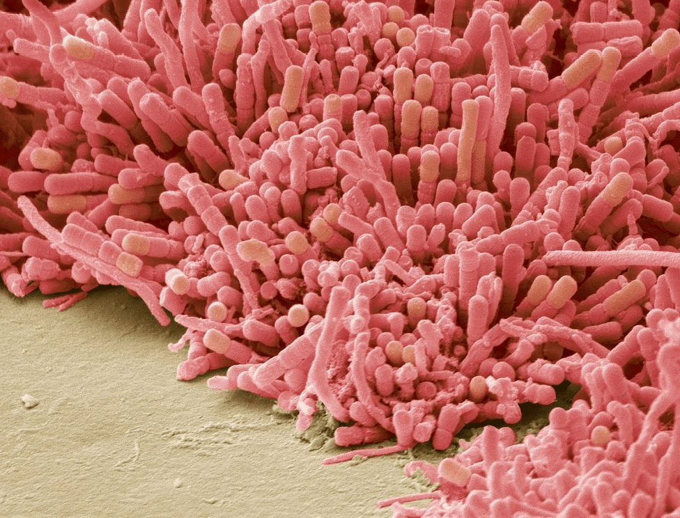 """These things hang out on your teeth if you don't brush after a meal. They are plaque forming bacteria, magnified 1000 times. (Photo: Twitter/<a href=""""https://twitter.com/Barcroft_Media"""">@Barcroft_Media</a>)"""