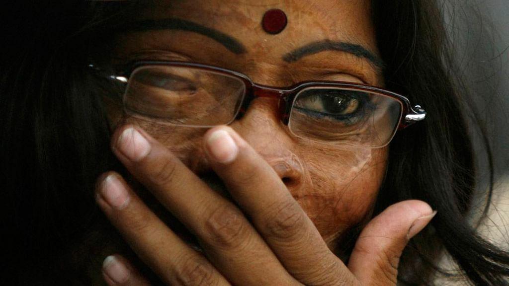 An acid attack survivor. (Photo: Reuters)