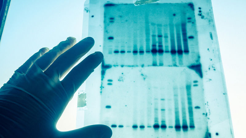 Representational picture of DNA testing. (Photo: iStockphoto)