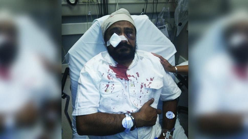 Inderjit Singh Mukker was assaulted on Tuesday when the assailant pulled up to his car yelling racial slurs. (Courtesy: Sikh Coalition)