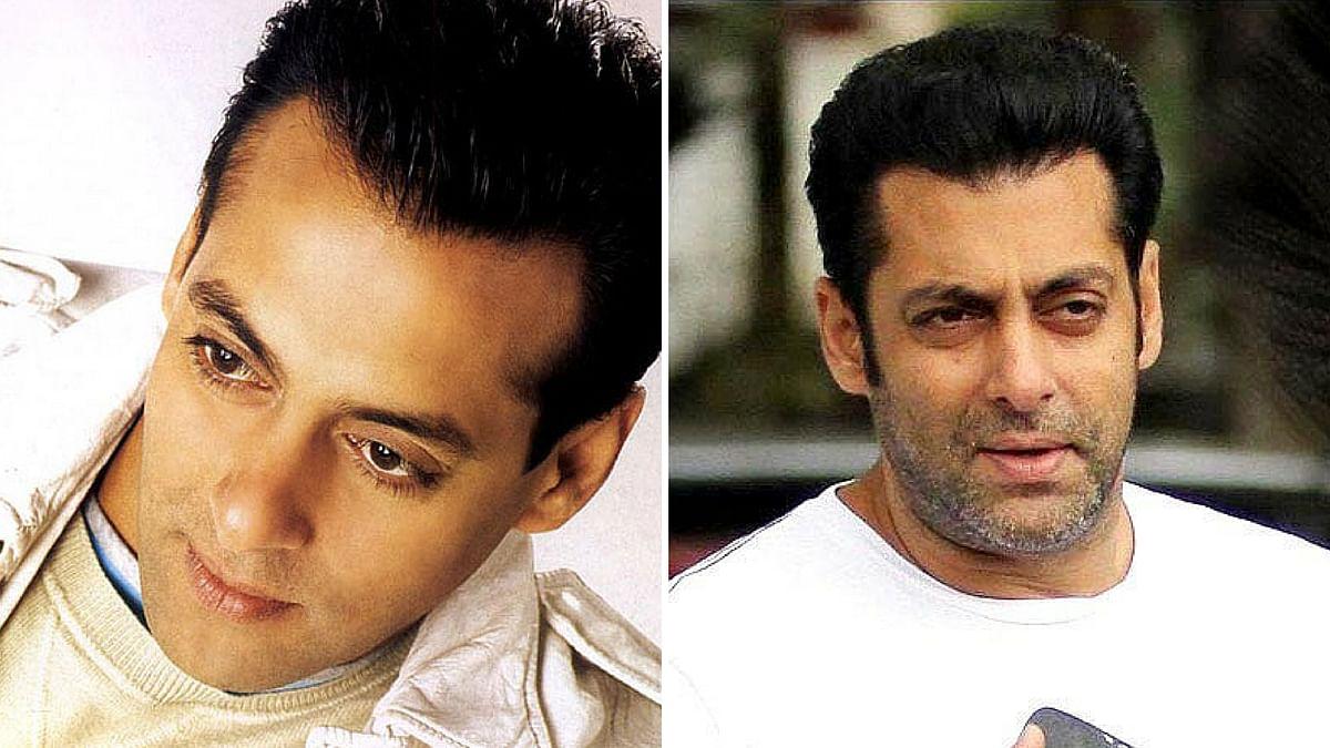 Pre and post hair transplant: Salman Khan. (Photo: <b>The Quint</b>)