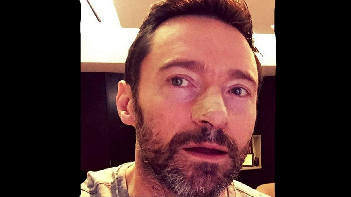"Hugh Jackman undergoes fifth skin cancer treatment (Photo: Instagram/<a href=""https://www.instagram.com/thehughjackman/"">thehughjackman</a>)"