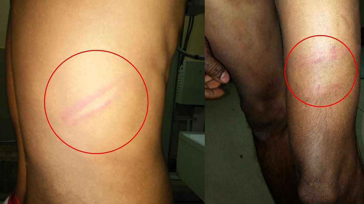 Wounds on Sadik's back and legs following the alleged assault. (Photo Courtesy: Puja Changoiwala)