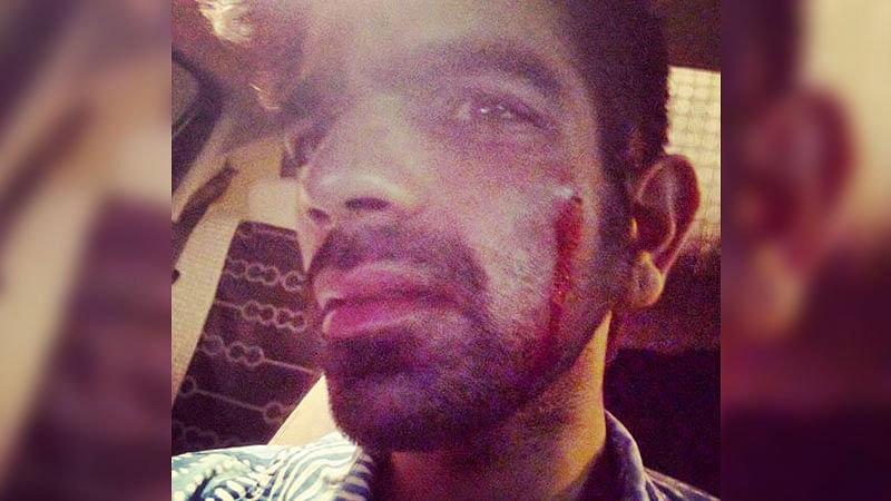 "26-year-old Daksh Bhardwaj was beaten by a mob  for swearing in Mumbai. (Photo: Facebook/<a href=""https://www.facebook.com/daksh.bhardwaj?fref=ts"">@Daksh Bhardwaj</a>)"