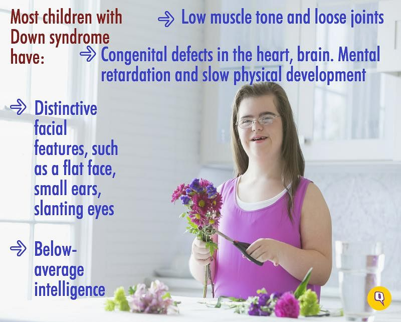 A new parent of a baby with Down syndrome is going to be scared, confused, worried, and grieving for a long while.