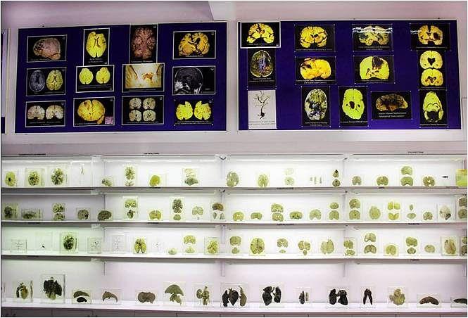 "Brains on display. (Photo Courtesy: Facebook/<a href=""https://www.facebook.com/Human-Brain-Museum-Nimhans-1434190360128650/?fref=photo"">Human Brain Museum, Nimhans</a>)"