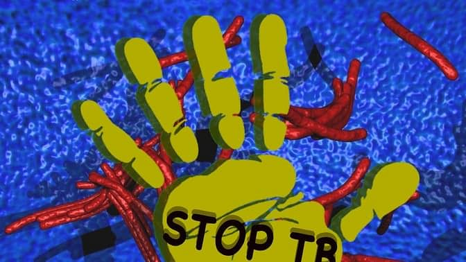 The average cost to a family who has one person suffering from TB can amount to as much as 39% of annual household expenditure – a catastrophe for any family already impoverished <i>(Source: Report by the Joint Monitoring Mission of the RNTCP) </i>(Photo: The Quint)