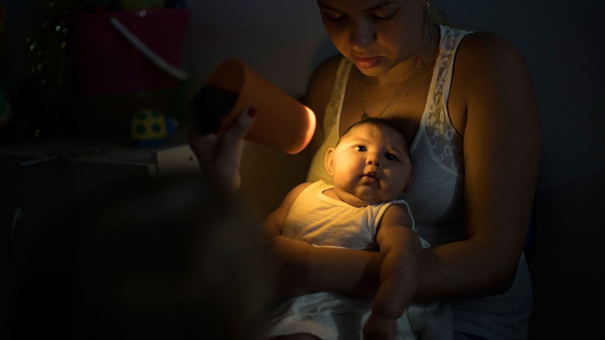 A baby born with microcephaly – stunted growth of brain triggered by the Zika virus in Brazil. (Photo: AP)