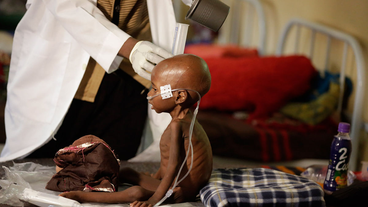 A malnourished child receives heathcare at a feeding centre run by Doctors Without Borders in Maiduguri Nigeria. (Photo: AP)