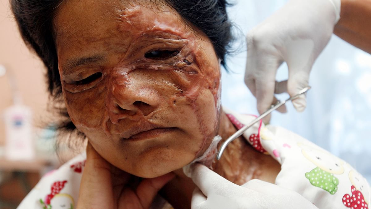 Due to the absence of a government resolution, hospitals don't offer treatment to acid attack victims free of cost or even certify them handicapped. (Photo: Reuters)