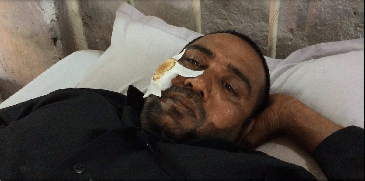 CRPF Jawan, Arun Kumar, almost lost his eye in a stone-pelting incident in South Kashmir. (Photo: <b>The Quint</b>/Poonam Agarwal)