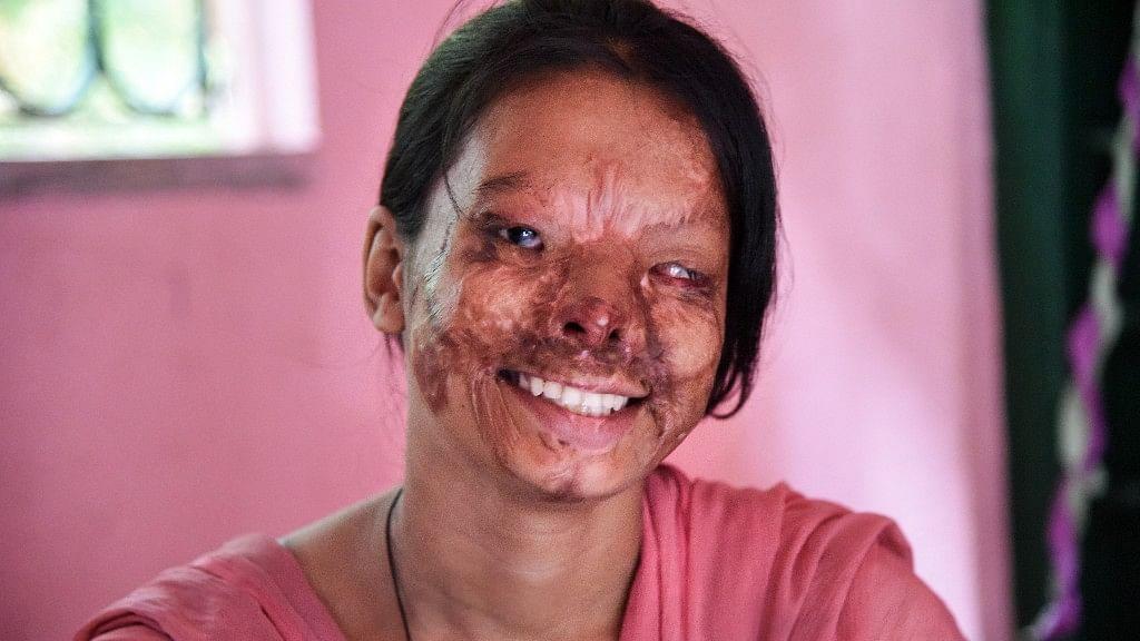 'My Face Mirrors Society': Acid Attack Victim Awaits Justice