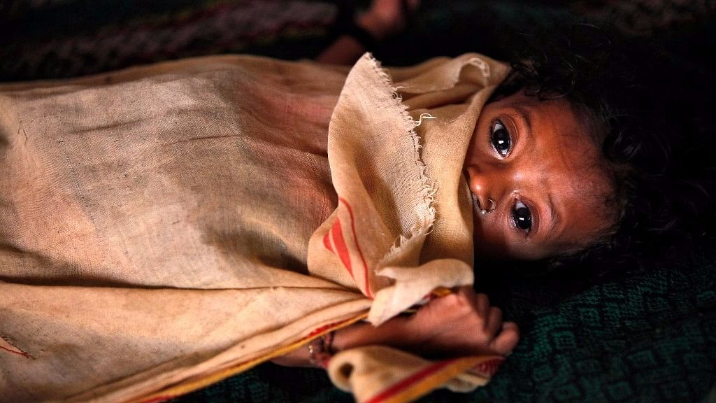 India is home to 40 Million stunted children, the largest number in the world. (Photo: Reuters)