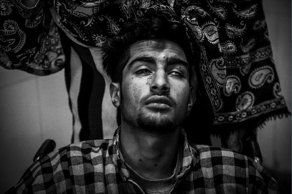 Ishtiyaq, 17, a pellet injury victim, awaits for medical attention at a hospital in Srinagar. (Photo: Hashim Hakeem)