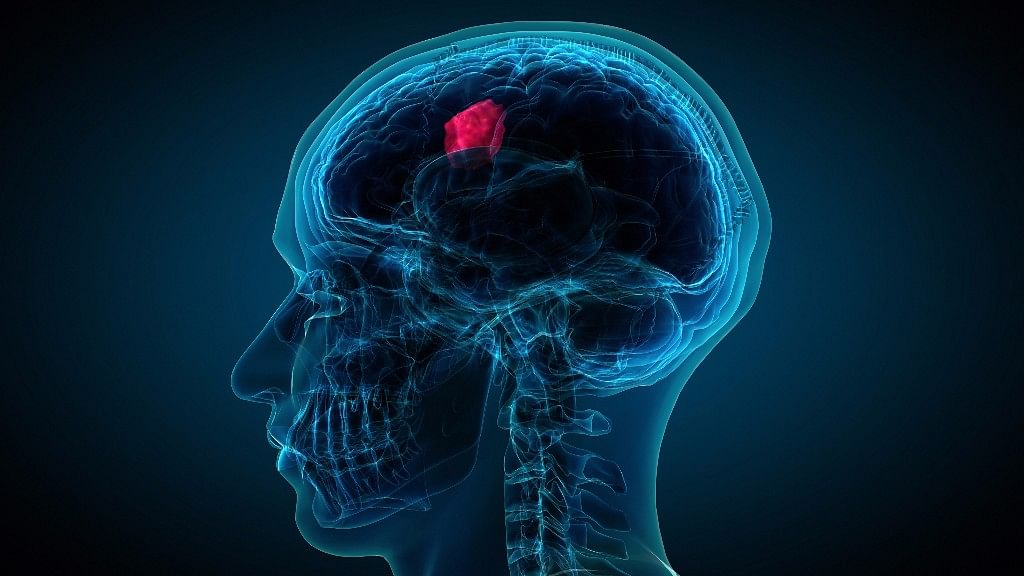 Simply put, a brain tumour is a collection of cells which is growing abnormally.