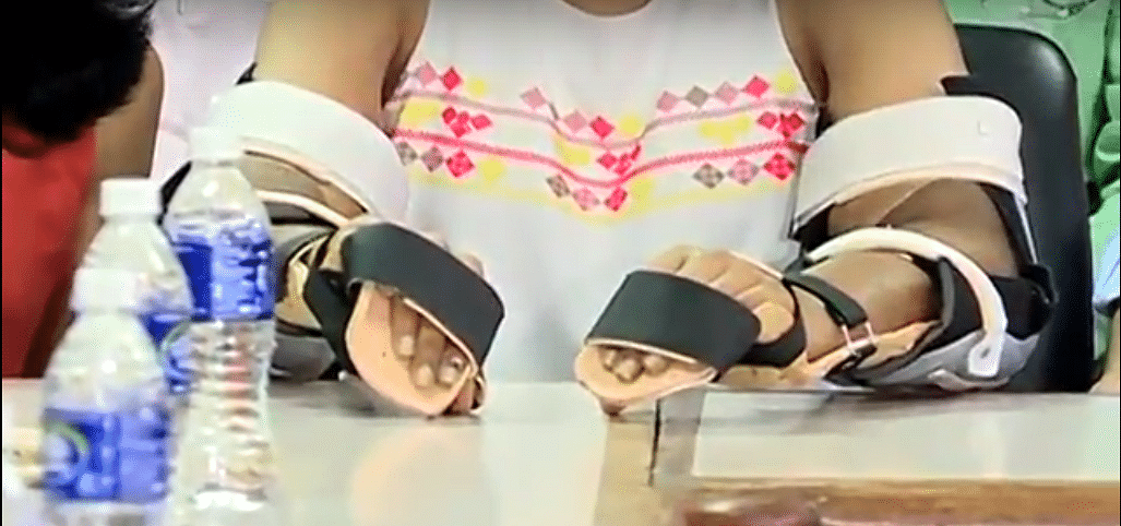 Earlier, Shreya was using prosthetic hands which she wan't comfortable with.