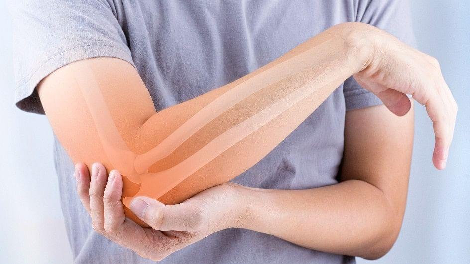 Rheumatoid arthritis (RA) is a chronic, autoimmune, inflammatory condition.