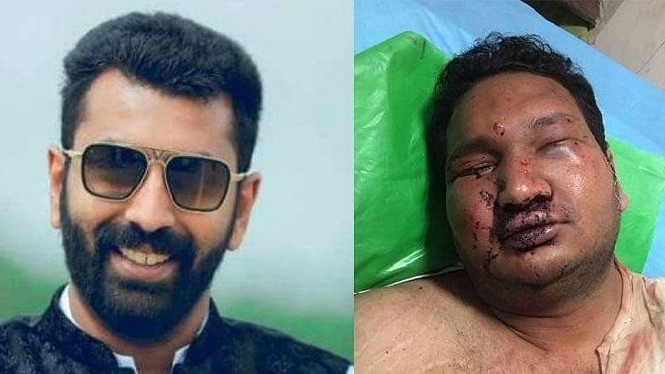 As his nose and cheek bones are badly fractured, Vidvat – who was brutally assaulted by MLA NA Haris's son, Nalapad – still has difficulty breathing.