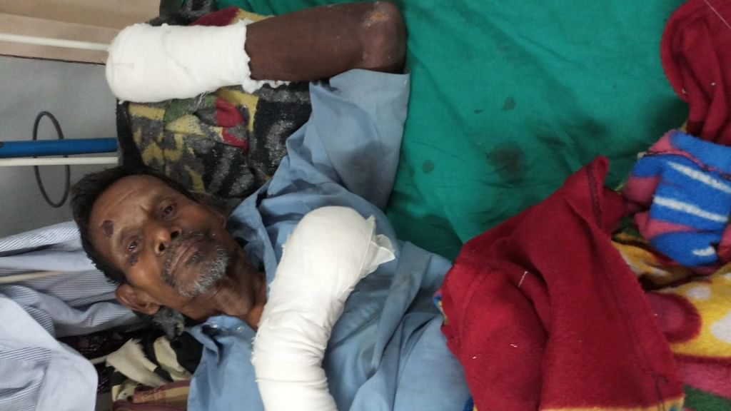 The 73-year-old had all his fingers chopped off by his younger son.
