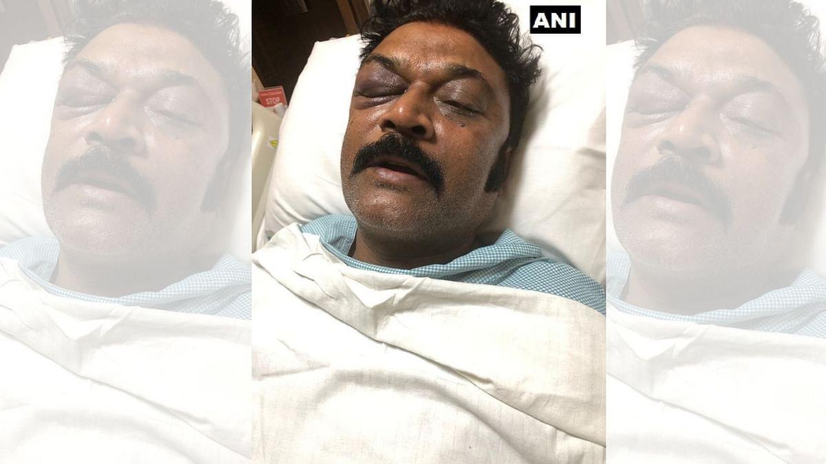 Karnataka Brawl: Cong Leader Anand Singh Files FIR Against JN Ganesh