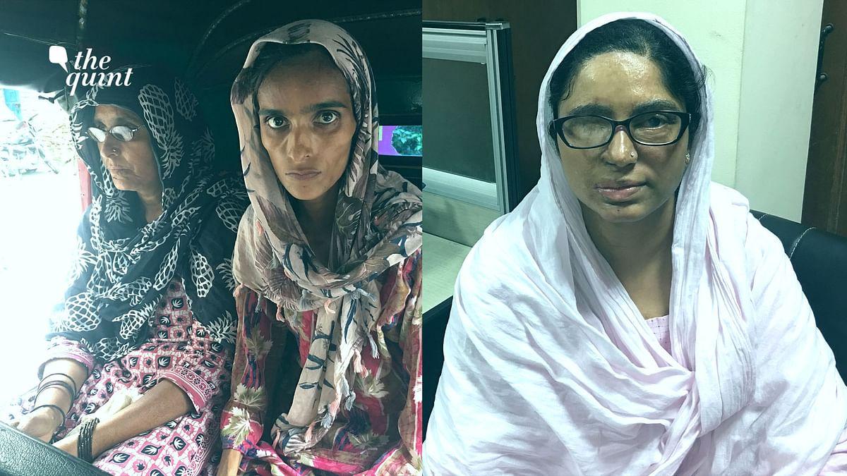 Delhi HC Directs Indraprastha Apollo to Admit Acid Attack Survivor