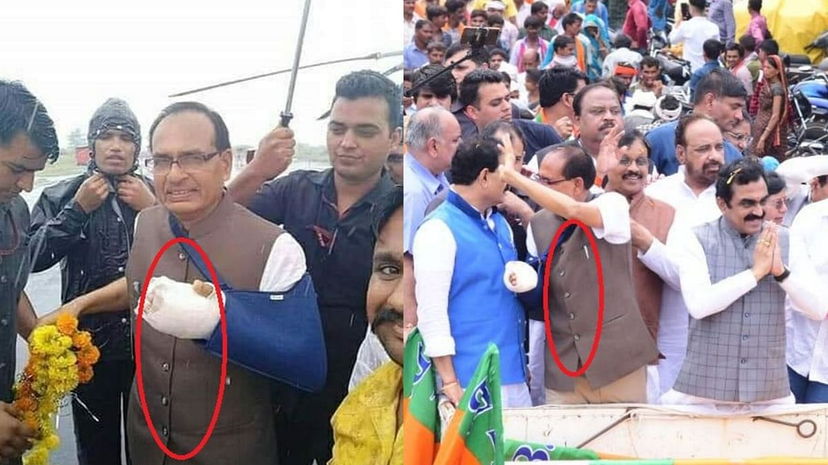 Comparison of photos displaying opposite button alignment on Chouhan's jacket.
