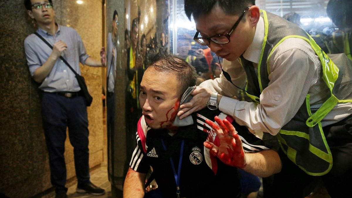 Attacker Bites Politician's Ear, Slashes Many Others in Hong Kong