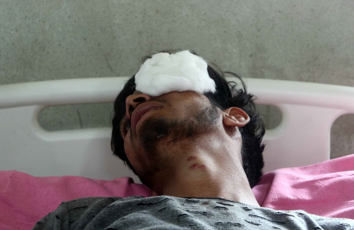 A boy who got injured during clashes with security forces in the fourth phase of Lok Sabha elections.