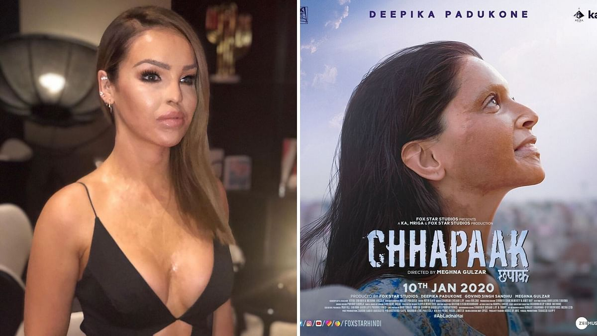 Katie Piper (L) and poster of <i>Chhapaak </i>(R)