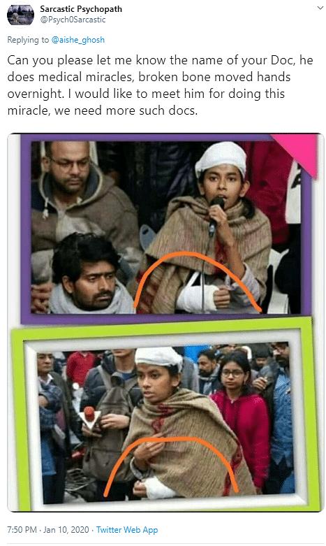 Did JNUSU Prez Aishe Ghosh Fake Injury? No, It's a Mirror Image