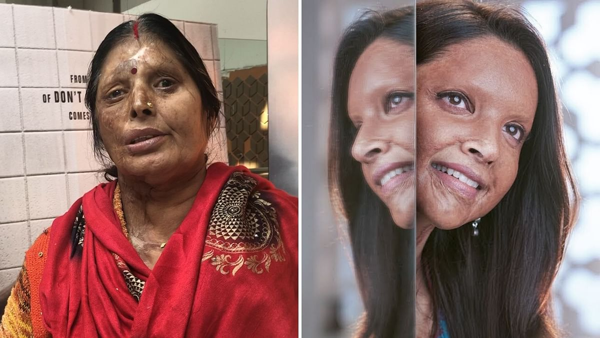 'A Must Watch,' Says  Acid Attack Survivor on Watching 'Chhapaak'