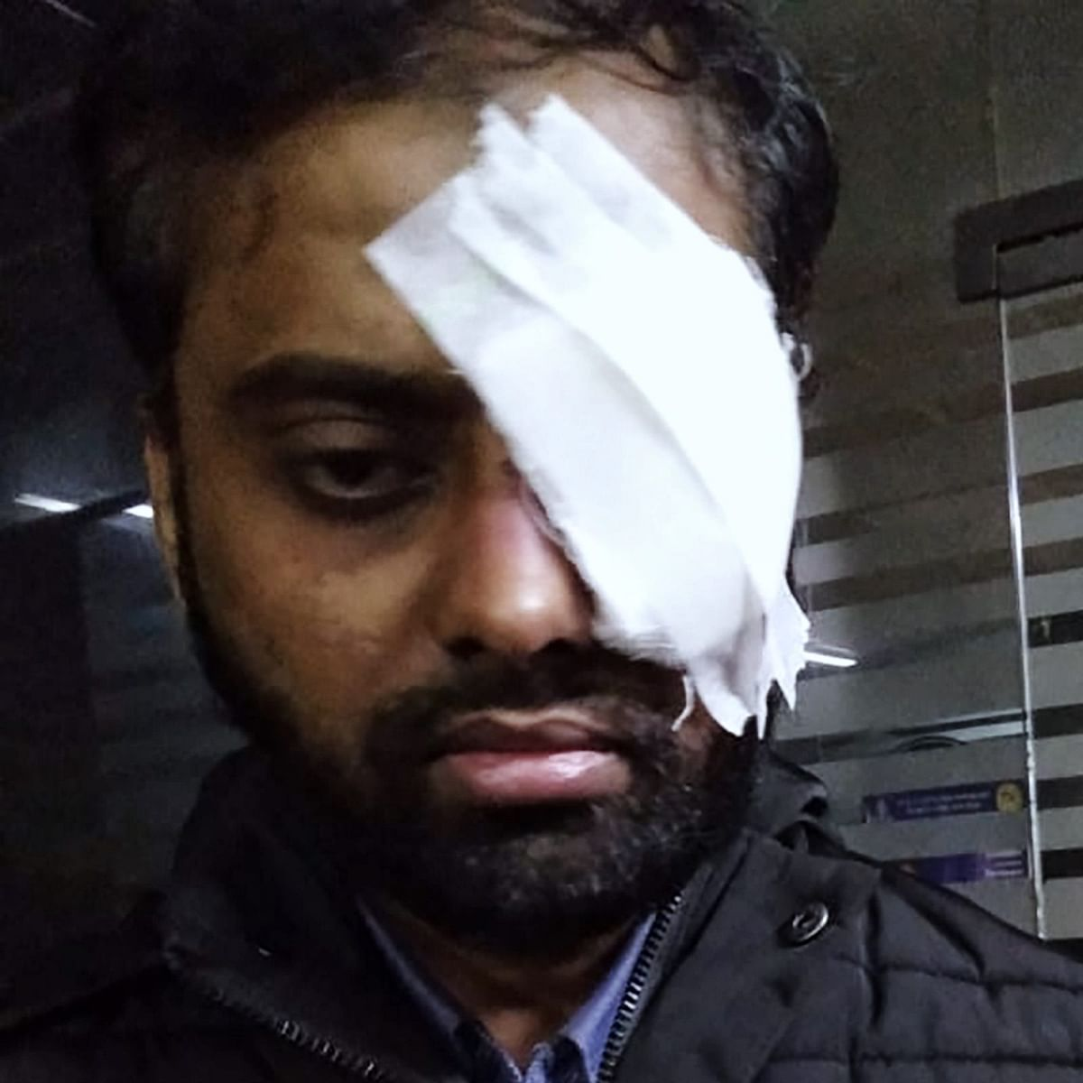 Mohd Minhajuddin, LLM student in Jamia, lost his left eye.