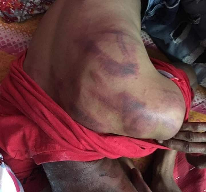 Rahul showing the injury marks as a result of alleged beating by iron rods.