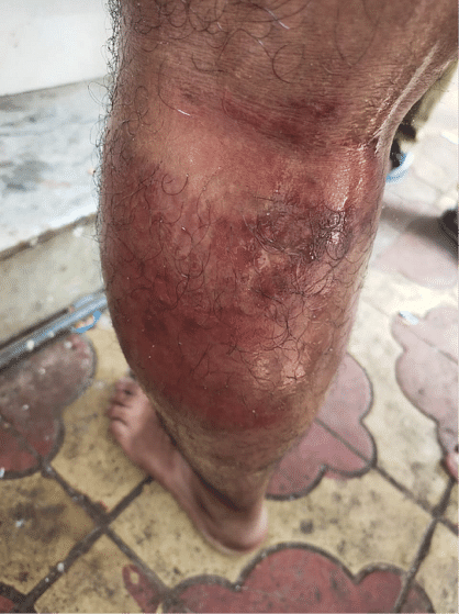 An MCGM sanitation worker living in Nalasopara, hit by policemen while traveling to work.