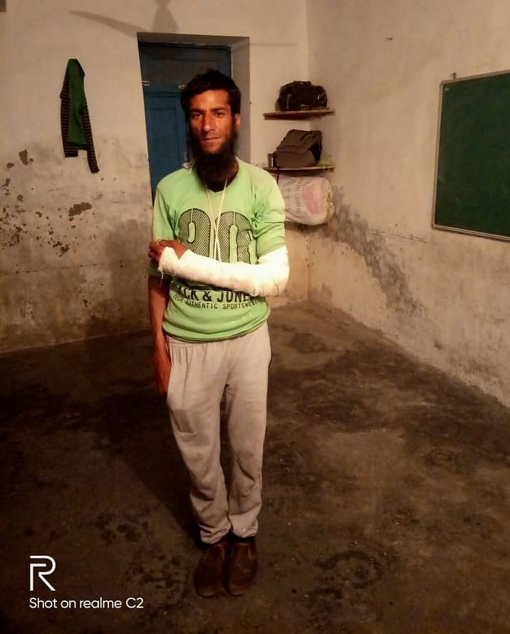 Raja Bahar with is fractured left hand. His family at home keeps calling to know if he is doing alright. He has one son who he can not wait to meet.