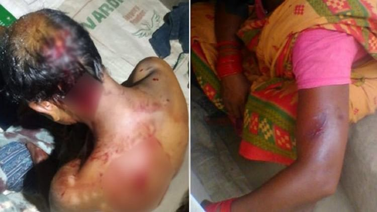 Horrific images of physical assault on labourers in a brick kiln from Tiruvallur district in Tamil Nadu.