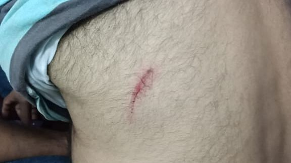 Marks on Hanif's body