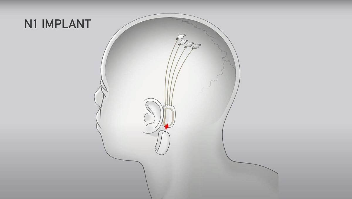 The operation will require a 2mm incision in your skull.