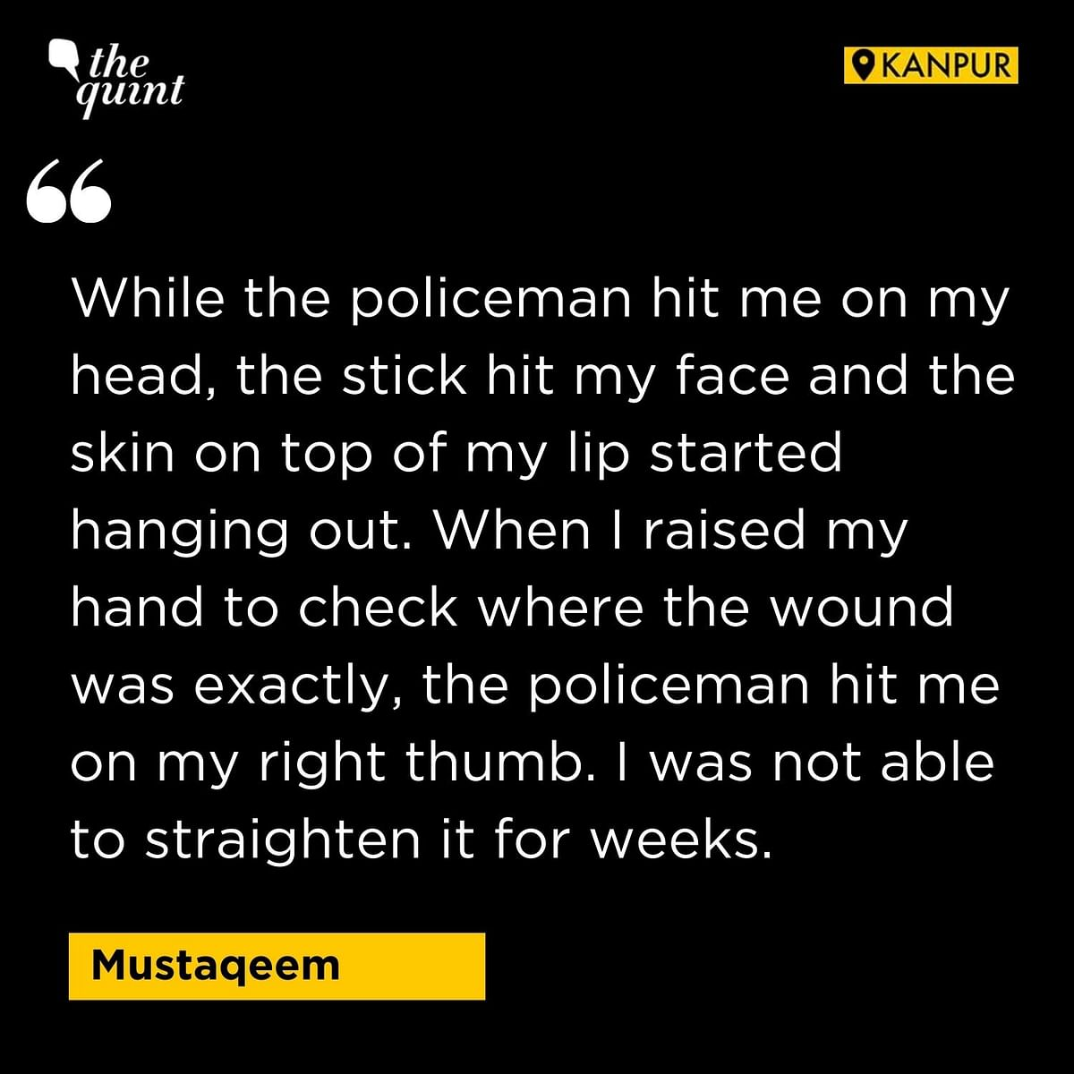 'Police Burnt My Beard': Painful Details of Violence in UP Emerge