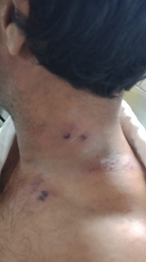 Skin infection of a crew member because of the poor quality of water onboard ship.