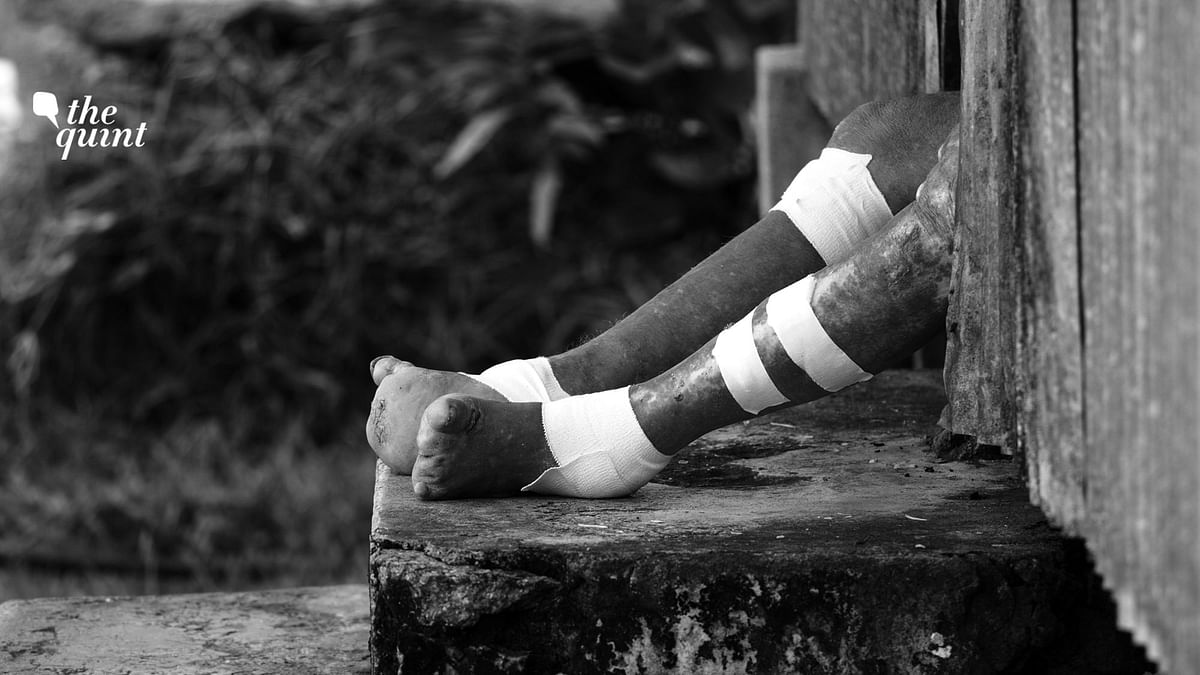 Image of a leprosy-affected person's legs used for representational purposes.