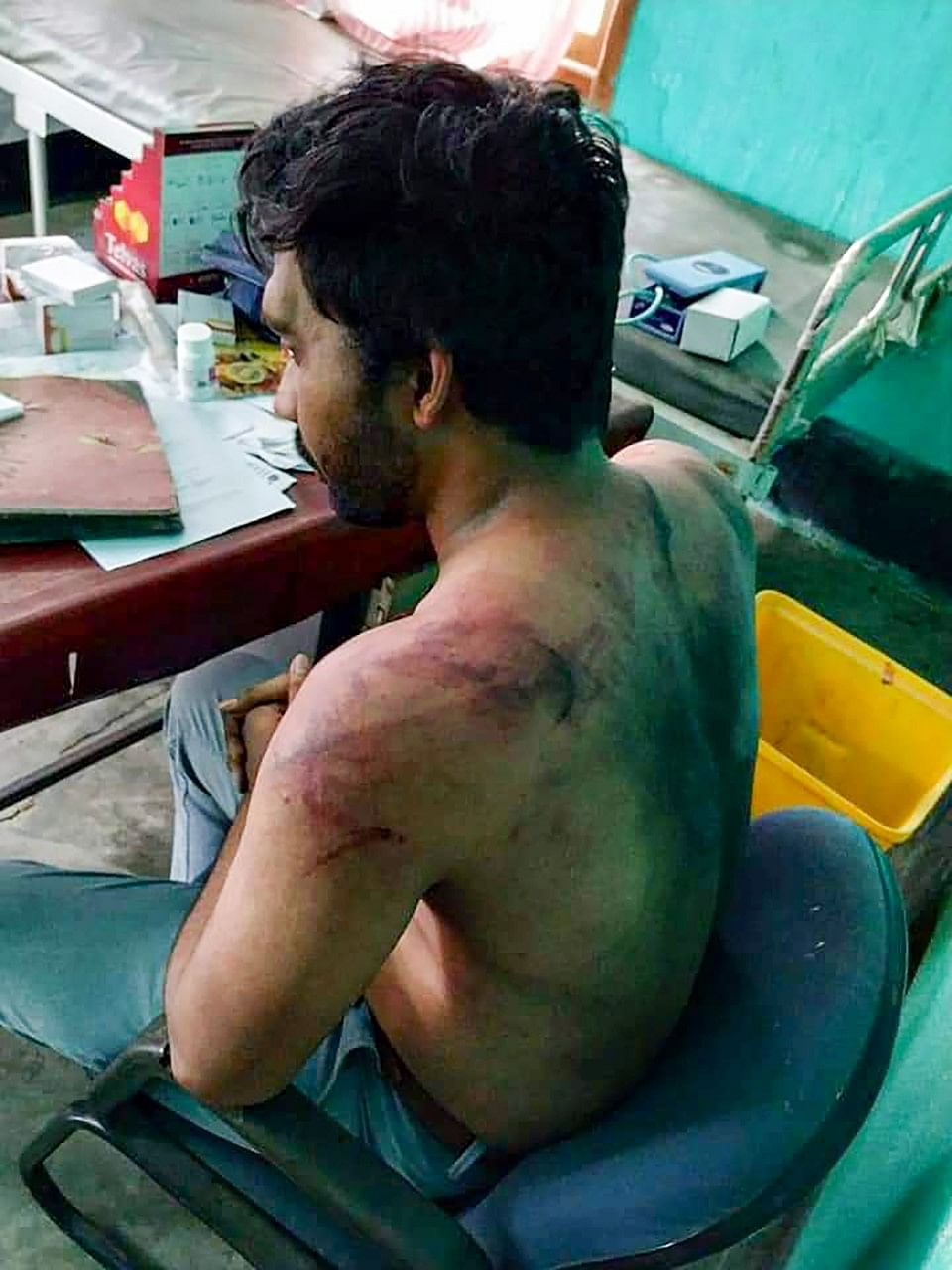 A picture of Dr Seuj Kumar Senapati, a medical officer of Udali COVID care centre, who was assaulted by miscreants, in Hojai district of Assam.