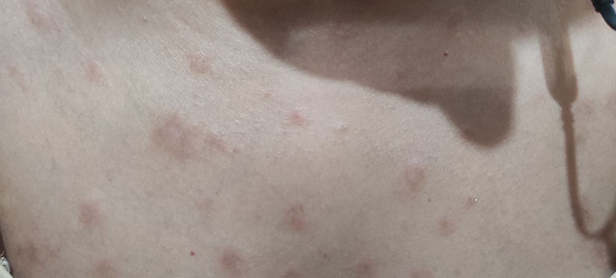 Rashes for 2 Weeks After Covishield Dose, No Follow Up From SII