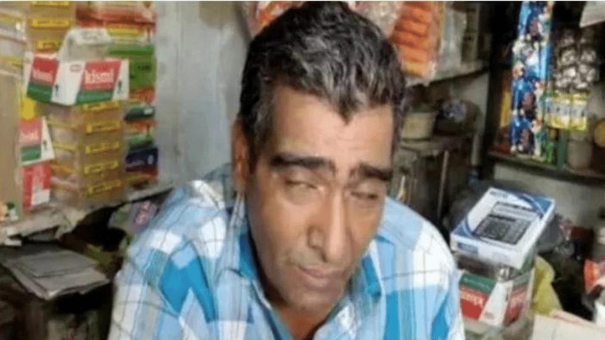 Meet This Real Life 'Kumbhakaran' Who Sleeps 300 Days a Year