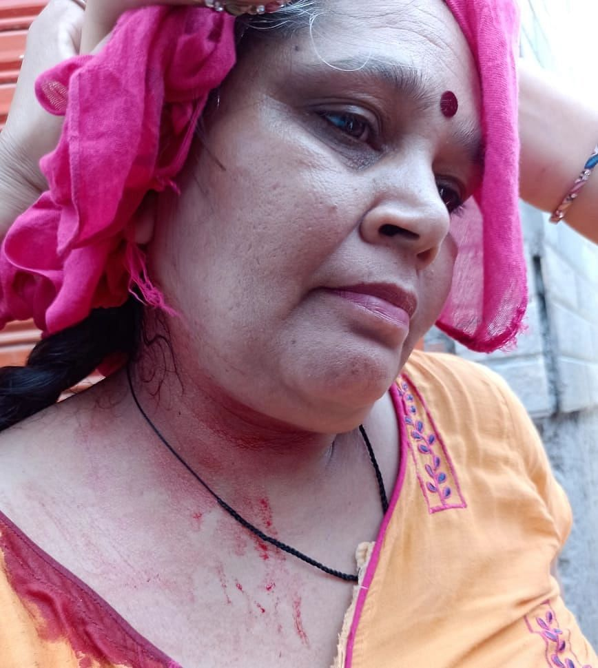 """<div class=""""paragraphs""""><p>This is Kamlesh who was injured on her head.</p></div>"""